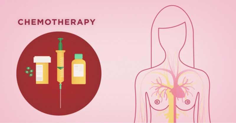 quando-serve-la-chemioterapia