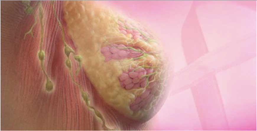 il-linfonodo-sentinella-e-gli-stadi-di-un-tumore