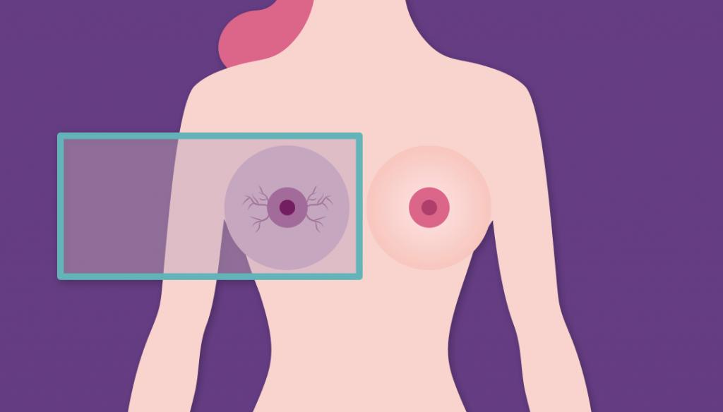 Mammografia a Roma - Esame Mammografico