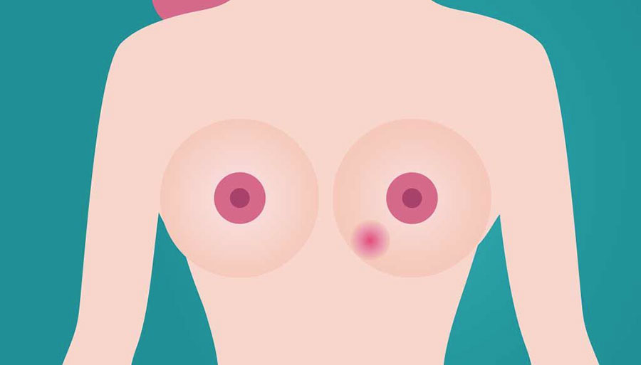 Cura nodulo al seno roma