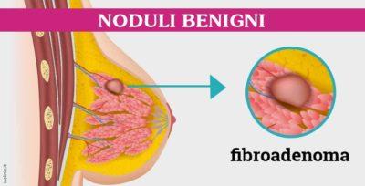 diagnosi-fibroadenoma-roma