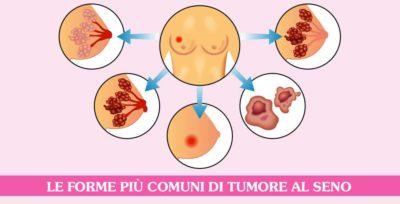 tipi-di-cancro-al-seno