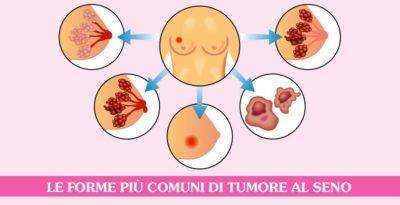 Quali sono i tipi più comuni di tumore al seno