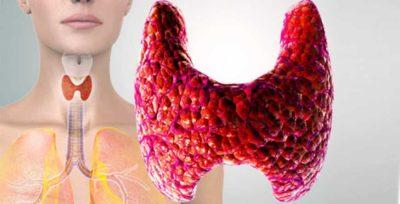 I-noduli-alla-tiroide-cosa-sono-e-come-si-diagnosticano senoclinic roma
