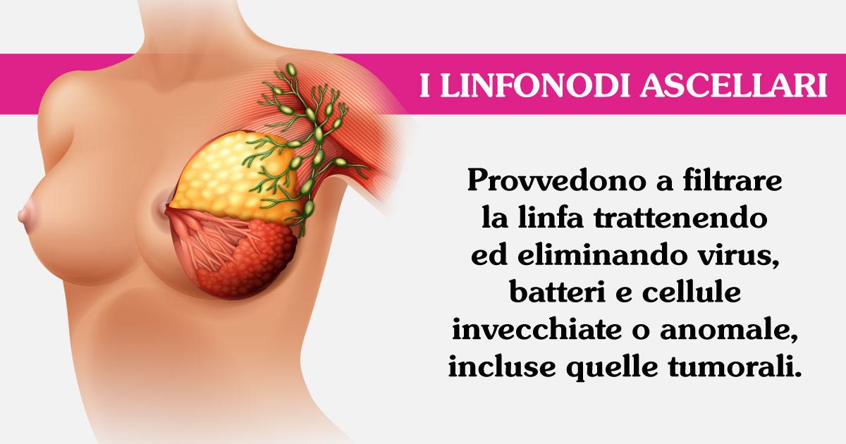 dissezione-ascellare-svuotamento-ascellare-senoclinic-roma