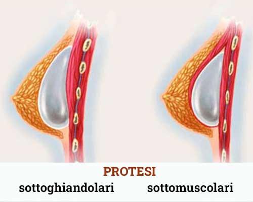 collocazione-protesi