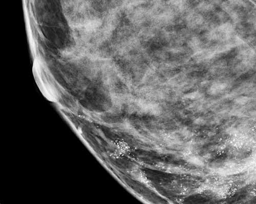 microcalcificazioni-seno