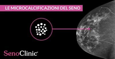 Le microcalcificazioni del seno