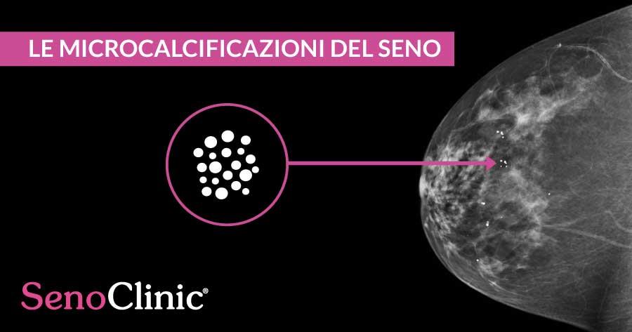 microcalcificazioni-del-seno-roma-senoclinic