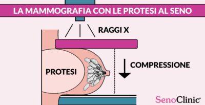 La Mammografia con le protesi al seno