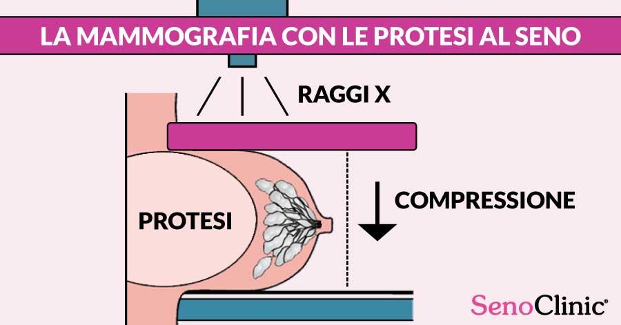 La-Mammografia-con-le-protesi-al-seno