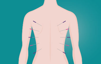 agopuntura roma senoclinic