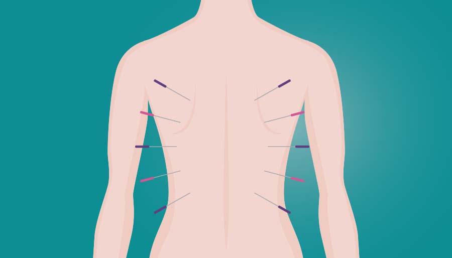 Agopuntura - Trattamenti e gestione del dolore SenoClinic a Roma