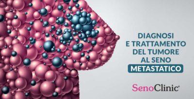 Il tumore al seno metastatico