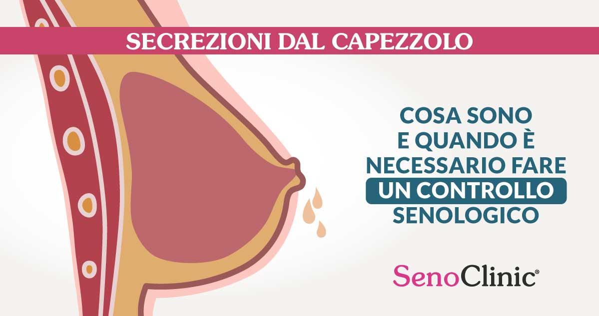 secrezioni-dal-capezzolo-senoclinic-roma