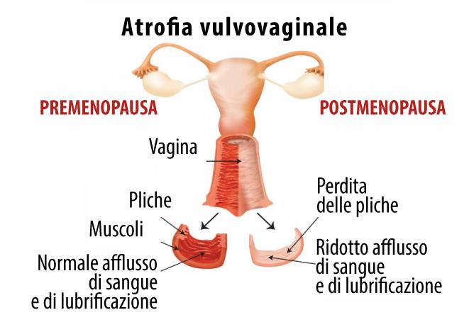 atrofia-vaginale-menopausa-senoclinic