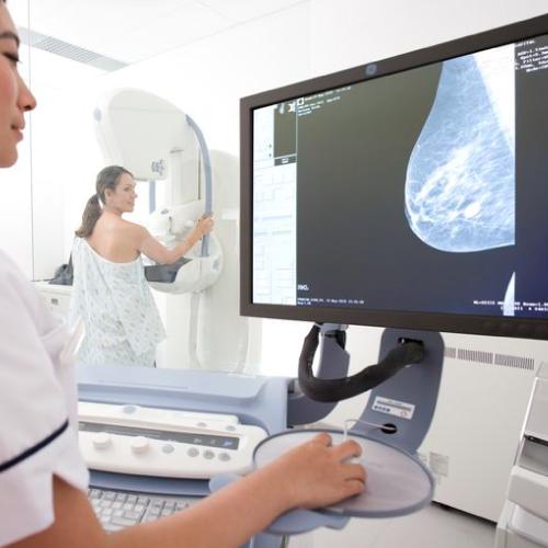 la-mammografia-senoclinic