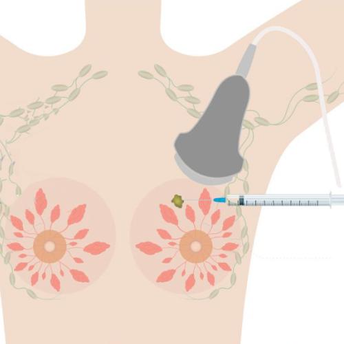 microbiopsia-seno-senoclinic