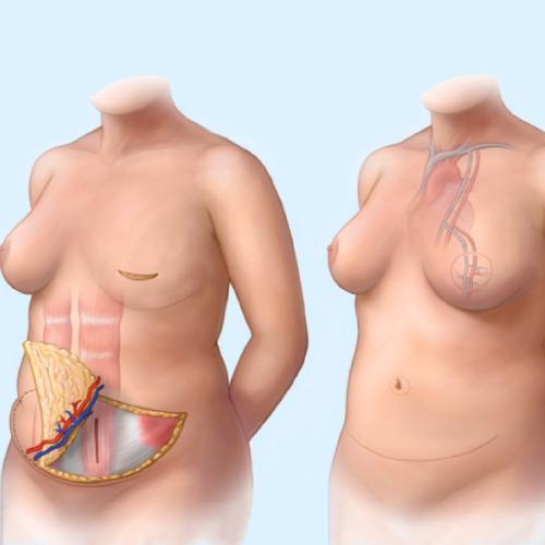 ricostruzione-autologa-della-mammella-senoclinic