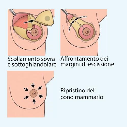 rimodellamento-del-seno-senoclinic