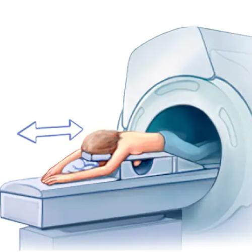 risonanza-magnetica-mammaria-senoclinic